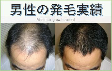 確実な発毛と徹底した経過観察