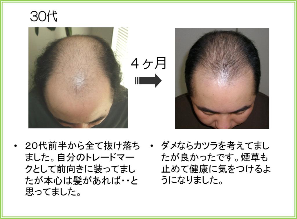 大阪薄毛AGA治療