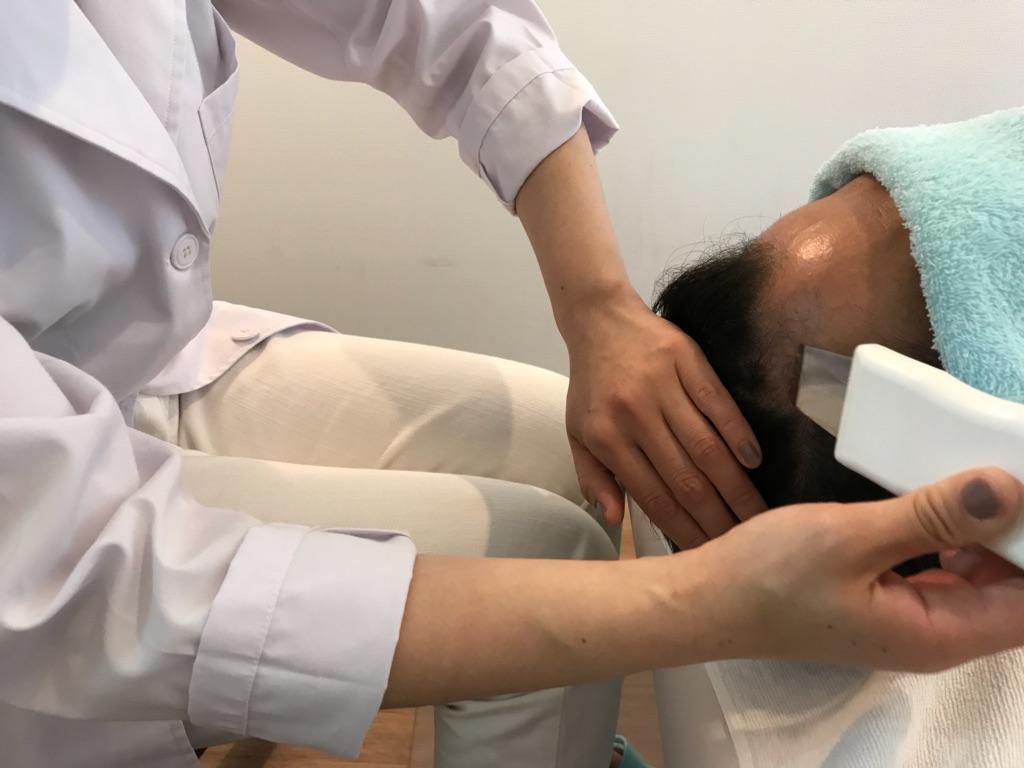 発毛率98.7% 薄毛の悩み解消に「全額返金保証」と「飲み薬なし発毛」2つのプラン